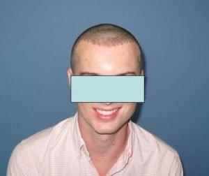 Chicago FUE Hair Transplant - Hair Transplant Mentor