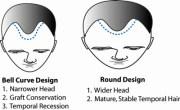 hairline design dallas hair transplant