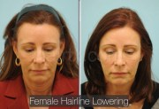 female hair transplantation dallas
