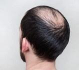 Male balding