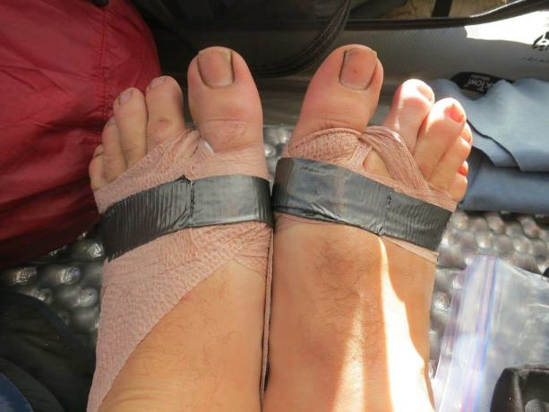 PCT Foot Wrap