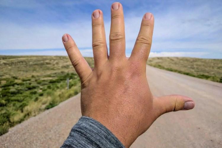 CDT Wyoming Mac Swollen Hand
