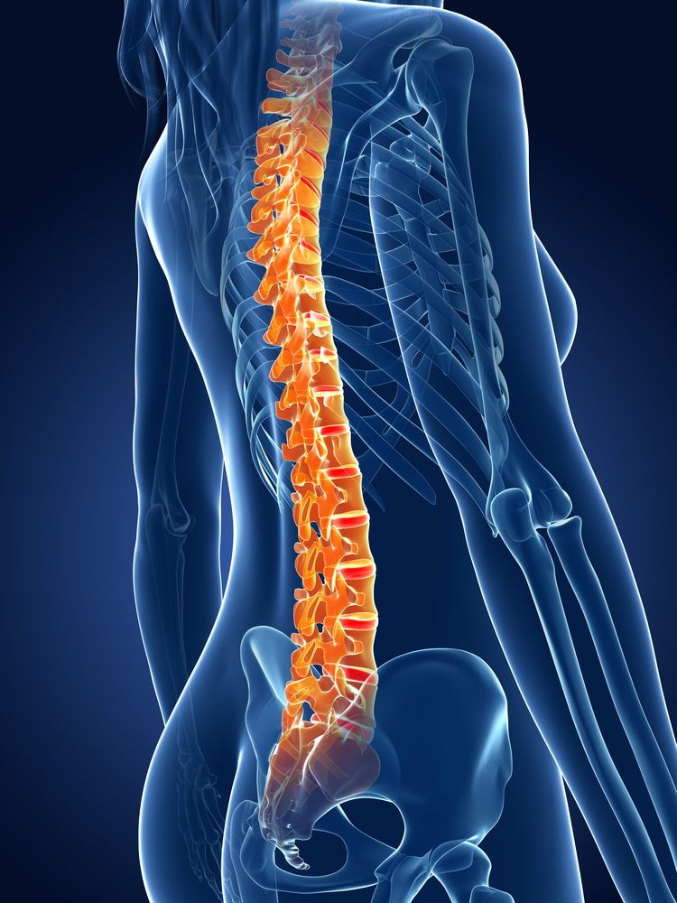4 Things You Need to Know About Spinal Fusion Surgery