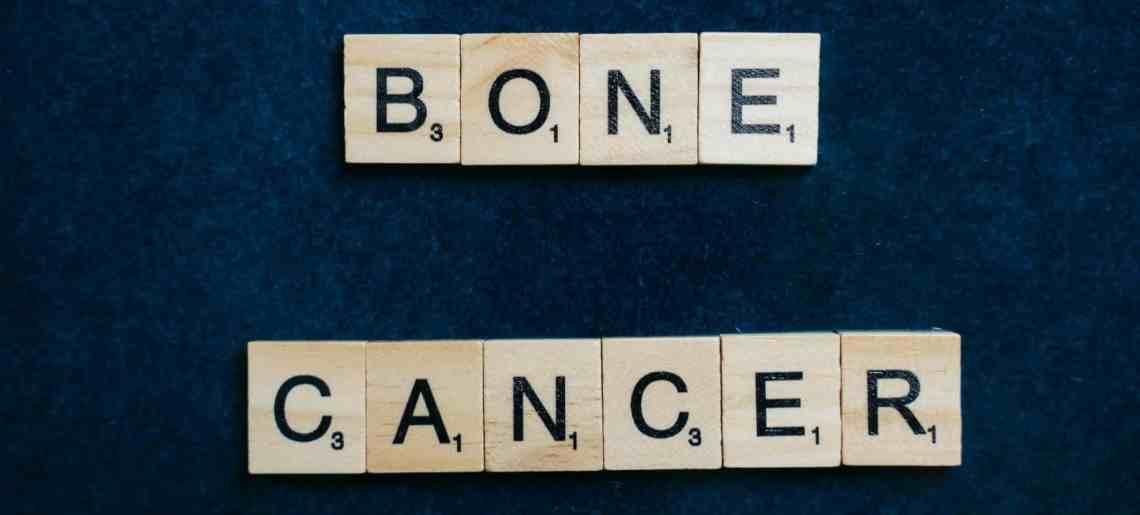 كم يعيش مريض سرطان العظام؟ وماذا يؤثر على المدة التي يعيشها المصاب بهذا السرطان