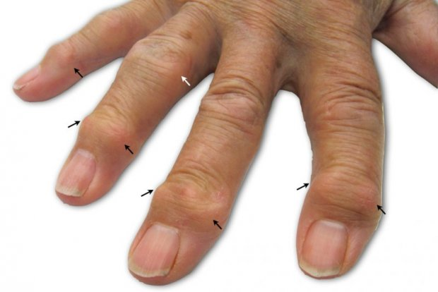 Osteoarthritis of the fingers   www.hand-surgery.eu