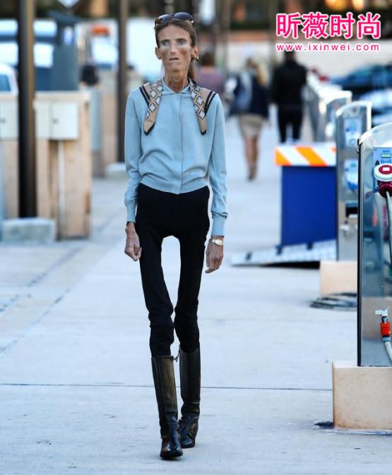 最廋的女人:身高1.73米體重只有27公斤-時尚生活在線