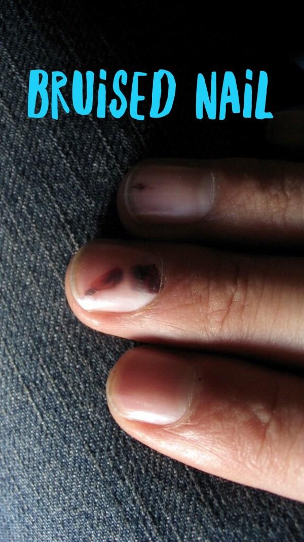 Bruised Nail