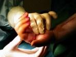 Intraoperative Mobilisation nach Arthrodesenentfernung