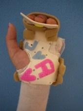 Palmare Fingerschiene am Patienten von palmar