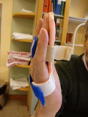 Fingerextensionsschiene nach der Behandlung mit Xiapex von lateral