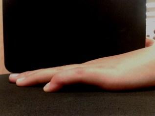 Bild des Streckdefizits des linken kleinen Fingers vor der ergotherapeutischen Behandlung