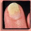 Onycholysis is the detachment of the fingernail from the nail bed.