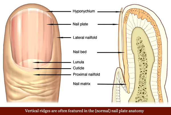 Nail Psoriasis Many People Who Have Also Experience Changes In Their Fingernails Or Toenails