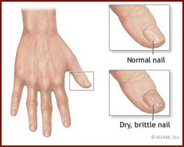 Brittle nails: a common condition, occurring in about 20% of people.