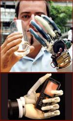 The bionic hand.