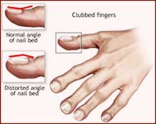 How to recognize a 'clubbing fingernail'?