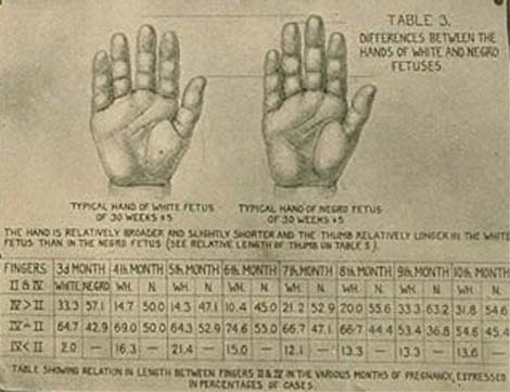 The second international congress of eugenics (1921) reported: differences between the hands of white and negro fetuses.