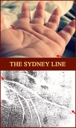 The Sydney line: an underestimated hand mark.