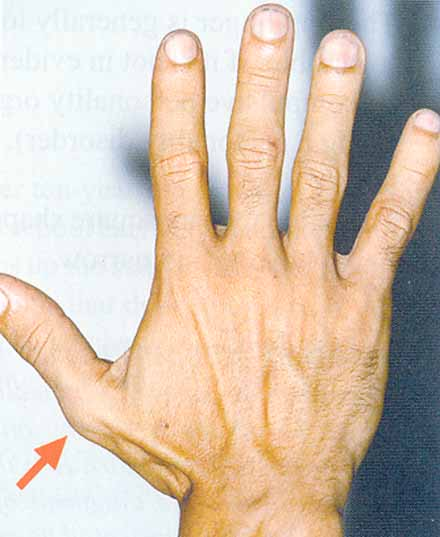 Example of a thumb with an 'OCD angle'.