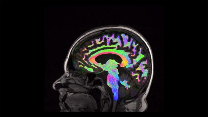 9386192e5a Η τραυματική εγκεφαλική βλάβη και τι μπορούμε να κάνουμε - Χανιώτικα Νέα