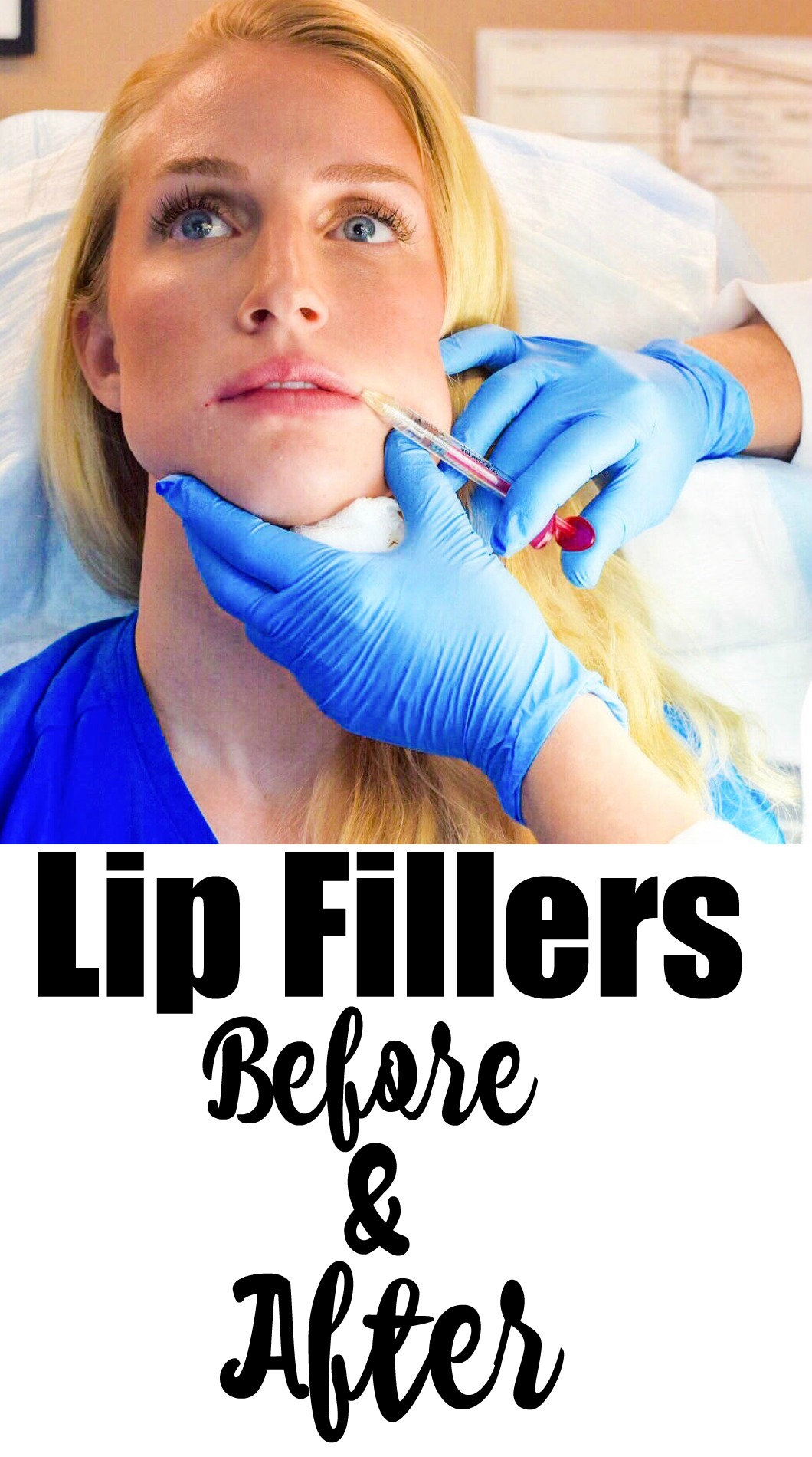 Lip Fillers Before and After #mommymakeover series by Jessica from Happily Hughes