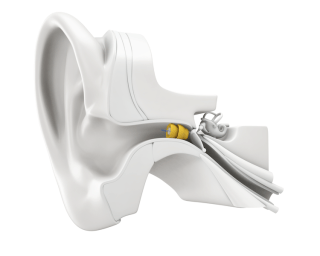 Lyric Hearing Aids at Happy Ears Hearing Center
