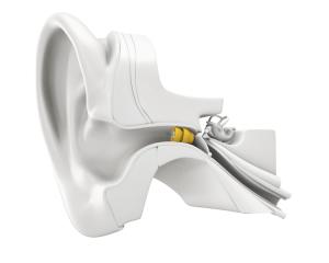 Lyric hearing aids