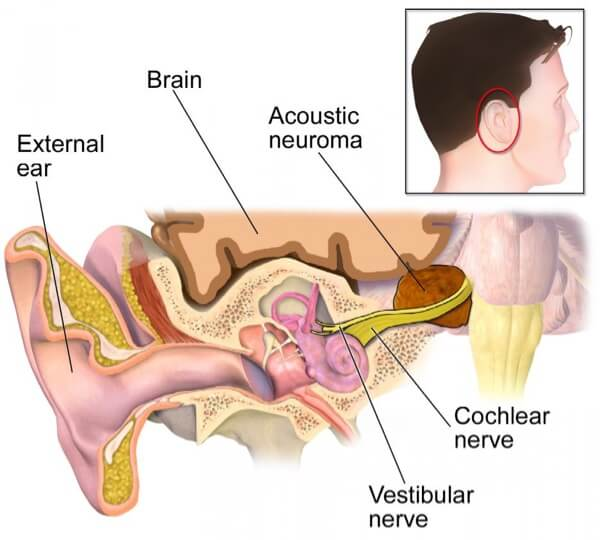Acoustic Neuroma Hearing Loss
