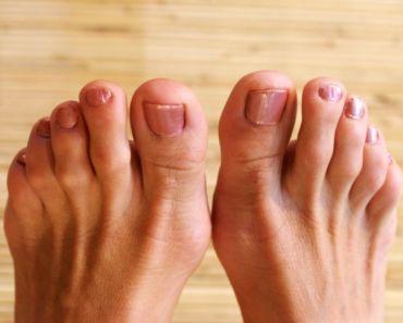 hammer-toe-foot-ailment