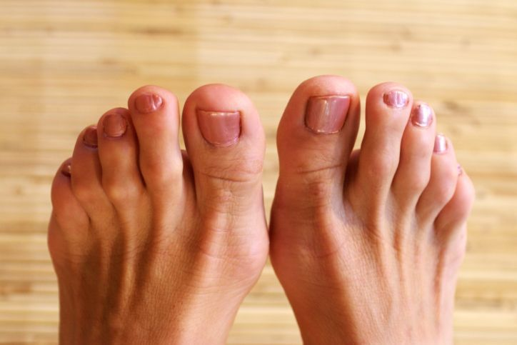 hammer-toes-foot-ailment-womans-feet