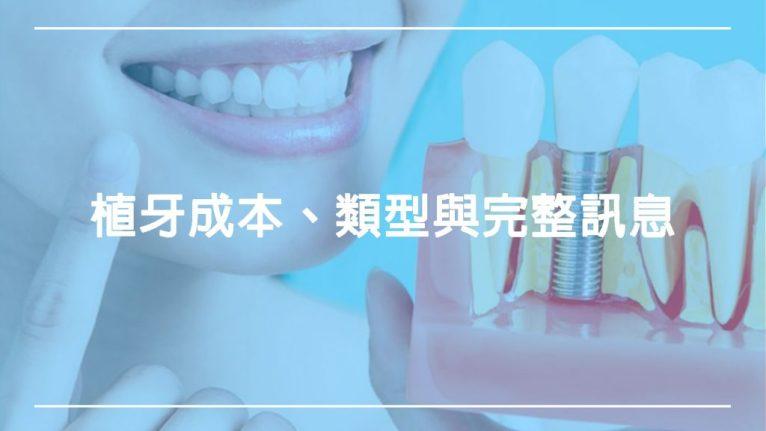 植牙完整訊息:植牙成本、類型、價格和程序步驟