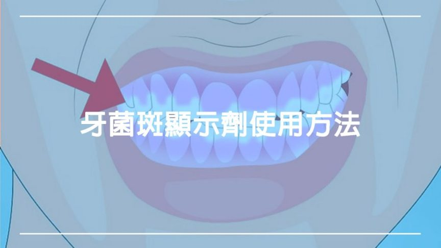 對抗牙菌斑!牙菌斑顯示劑使用方法