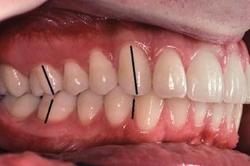 正確牙齒咬合