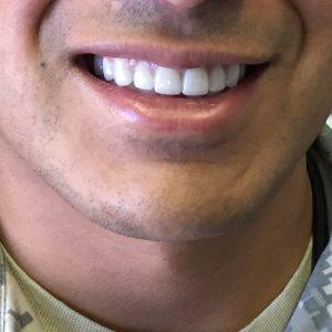 dental crowns in Fallston MD with Dr Melissa Elliott