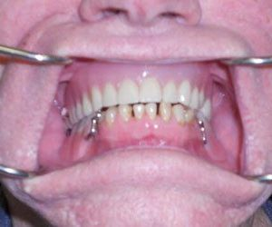 before dentures and crowns procedure