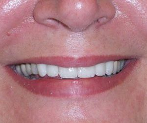 after dental veneers procedure