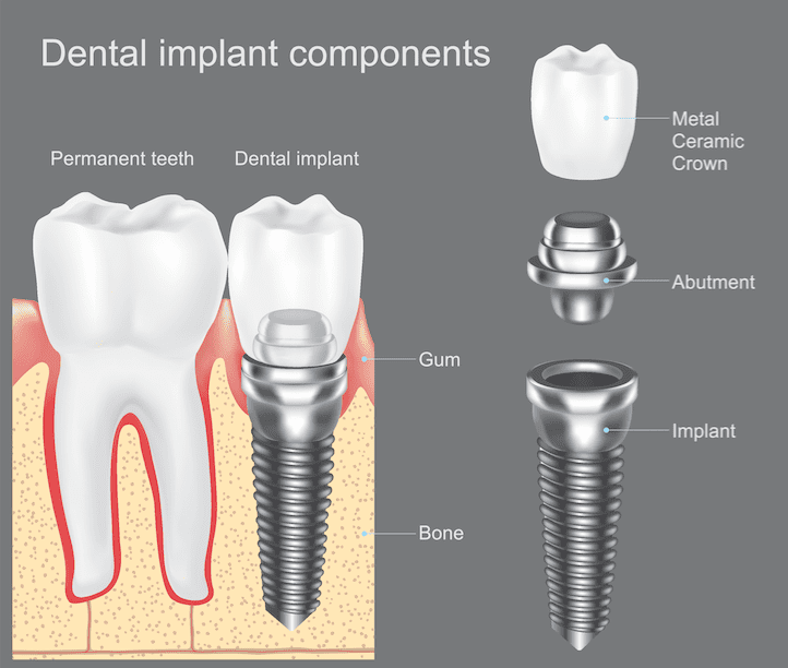 dental implants fallston md