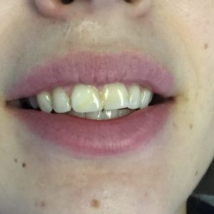 Before dental crowns procedure in Fallston, MD