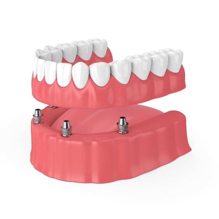 dental implants vs dentures in Fallston MD