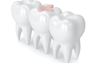 family dentist in bel air, maryland