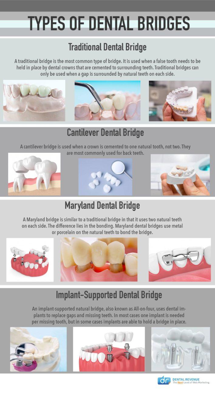 Dental Bridges infographic