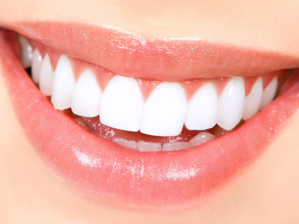 How Much does Teeth Whitening Cost in London