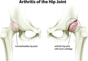 Arthritis Pain Relief In Orlando, FL - Harmony Wellness Center