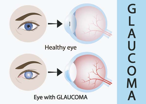 Major causes of permanent blindness in India is Glaucoma
