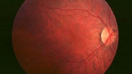 Fundus of patient with retinitis pigmentosa, early stage