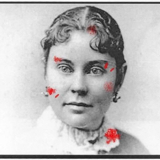 Bloody Lizzie