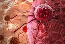 kanser-tedavisi