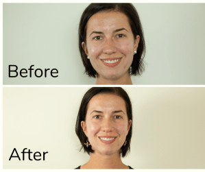 Before and after photo of my first chemical peel