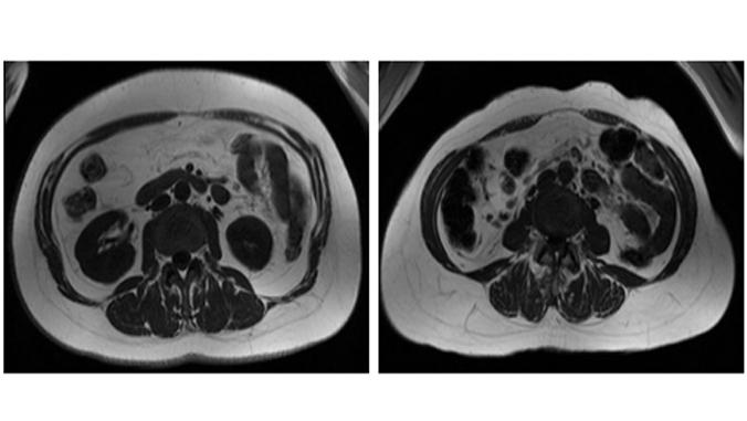 different amounts of visceral fat vs. fat under skin in the abdomen