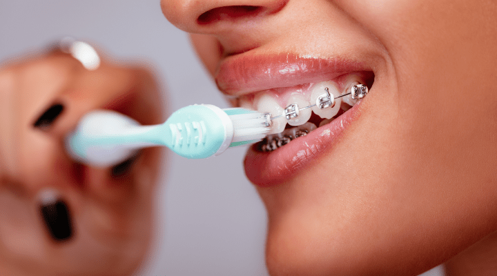 Learn How to Brush Your Teeth with Braces | A Dentist's Guide
